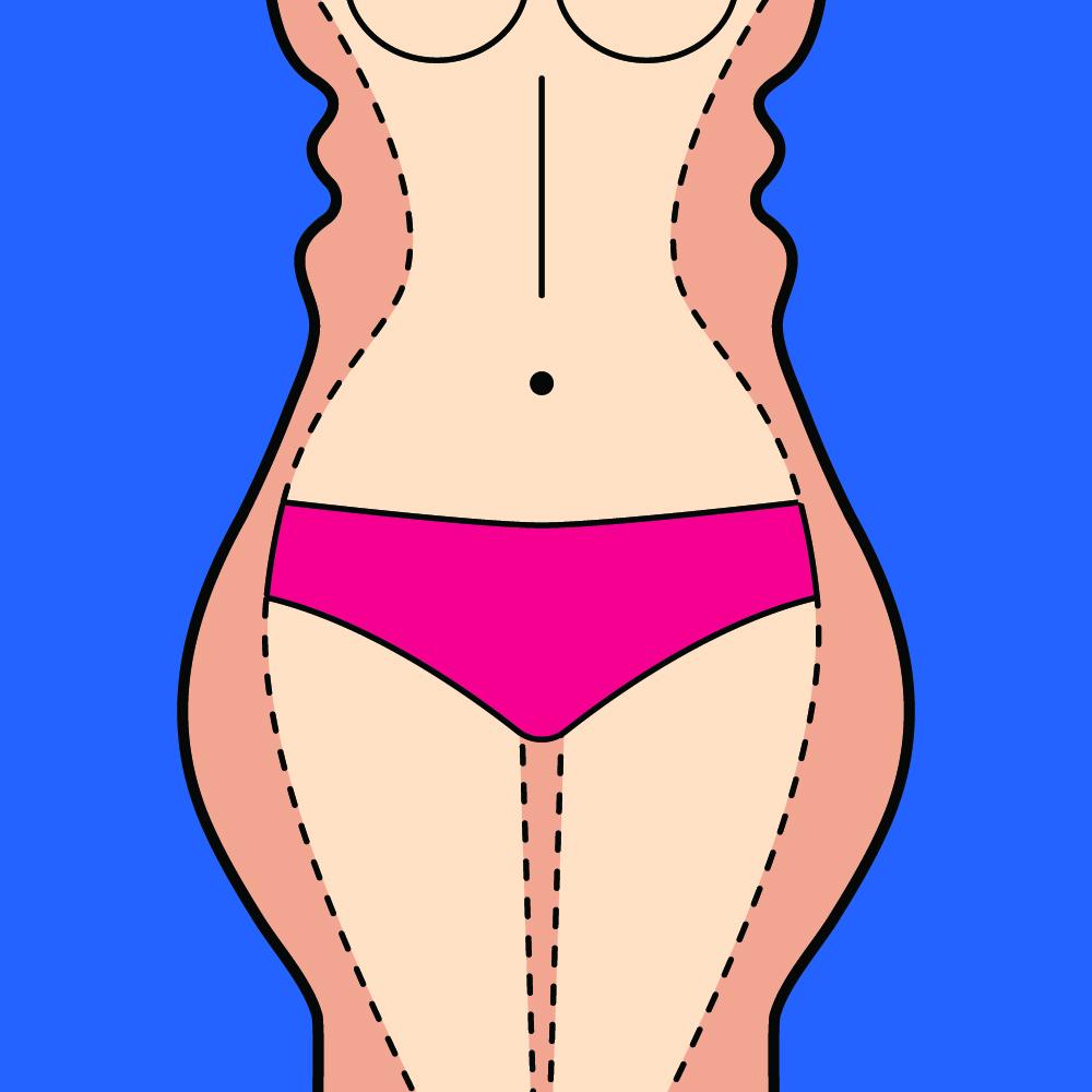 The Dangers Behind Weight Loss Surgery Karen Sutton Md